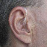 TenFour-EarMolds-Sample